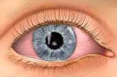 condition-conjunctivitis