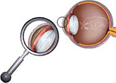 specialty-corneal-abrasion