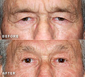 specialty-eyelid-surgery