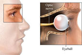 specialty-optic-neuritis