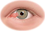 specialty-pterygium-pinguecula